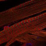 Drosophila body wall muscle